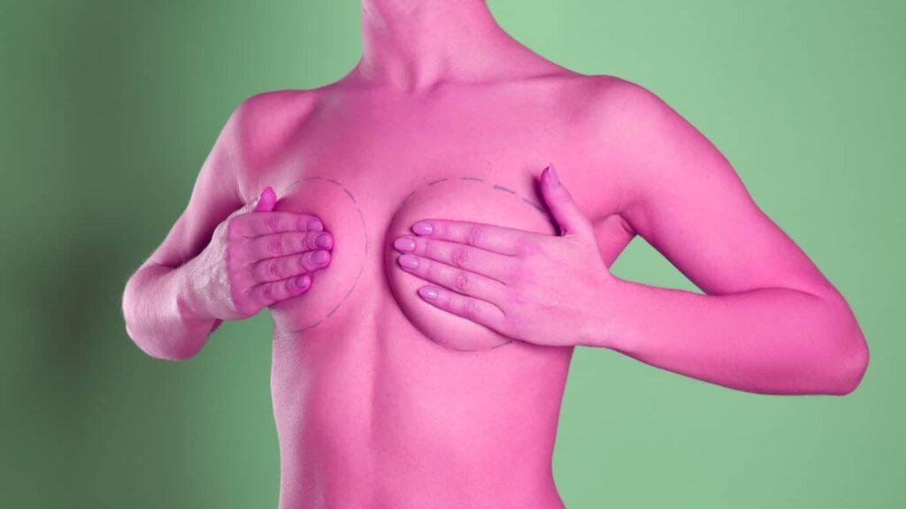 Senos femeninos con tecnología 3D: la nueva posibilidad estética.